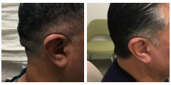 Cranioplasty Surgery Before & After Photos Beverly Hills