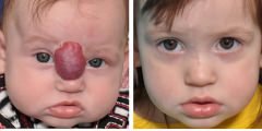 Hemangioma Reconstruction Surgery Before & After Photos Beverly Hill