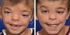 Hypertelorism Reconstruction Surgery Before & After Photos Beverly Hills