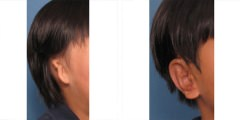 Microtia Ear Surgery Before & After Photo Beverly Hills