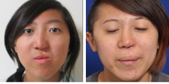 Orthognathic Surgery Corrective Jaw Surgery Before & After Photos Beverly Hills