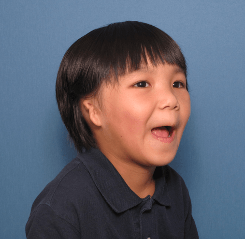 What is Microtia - Beverly Hills, Los Angeles