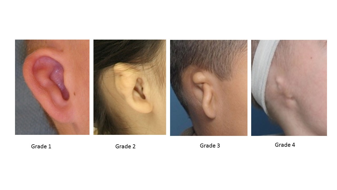 The Four Grades of Microtia